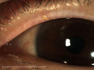 Blepharitis – International Eye Cataract Retina Centre