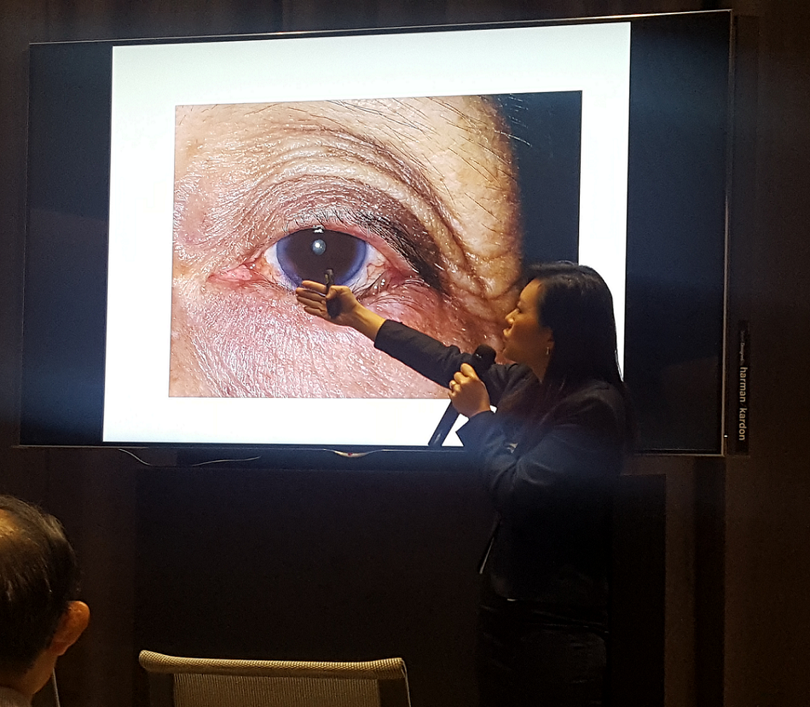 """Dr Joy Chan speaking on eyelid disorders during the """"Common Eye Conditions"""" public forum in Farrer Park Hospital held in conjunction with Awareness of Macular Diseases Week 2017."""