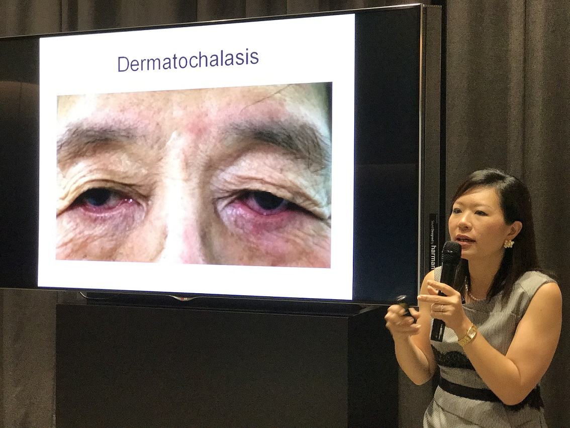 "Dr Joy Chan lecturing at the ""Common Eye Conditions"" free public forum on 20 May 2017 in Farrer Park Hospital."