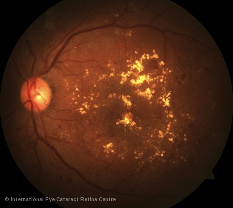 Retinal swelling due to diabetic retinopathy is a major cause of impaired vision in working-age adults.