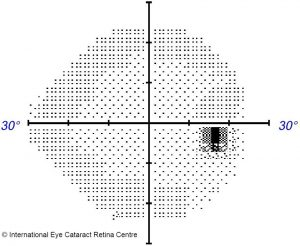 Normal visual field