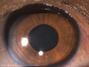 A normal eye with a clear crystalline lens