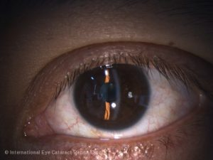Normal eye without pterygium