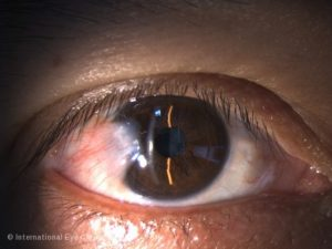 A pterygium covering part of the cornea and threatening vision