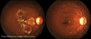 Diabetic retinopathy before (left) and after (right) serial Lucentis eye injections and laser therapy