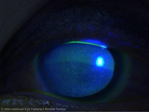 Severe corneal punctate keratitis can occur due to contact lens overwear