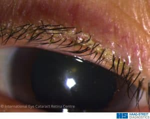 Blepharitis causing a build-up of a biofilm and crusting on the eyelid margin near the base of eyelashes