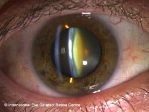 Cataract risk is increased by two to three times in smokers compared to non-smokers